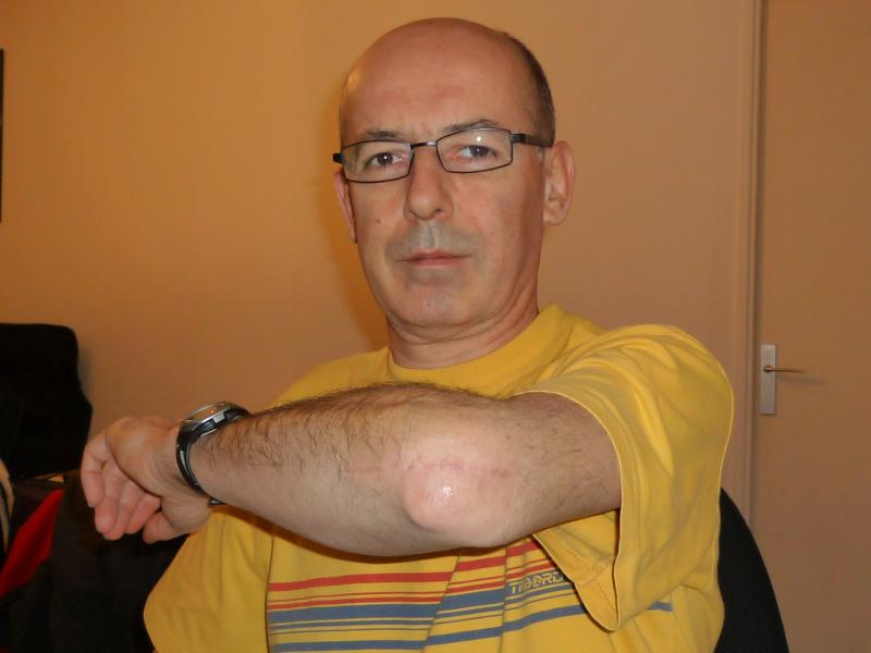 Fracture du coude – 6 mois après | Pascal's weblog